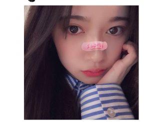 乃木坂46 寺田蘭世、「I LOVE U」の絆創膏がおしゃれな至近距離ショット公開!